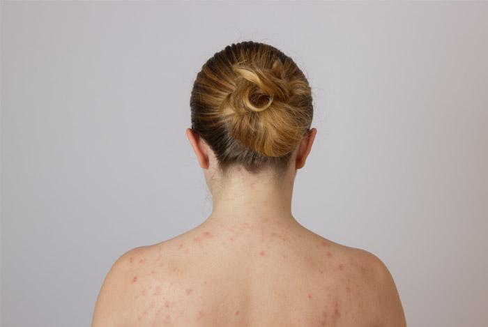 bad skin back